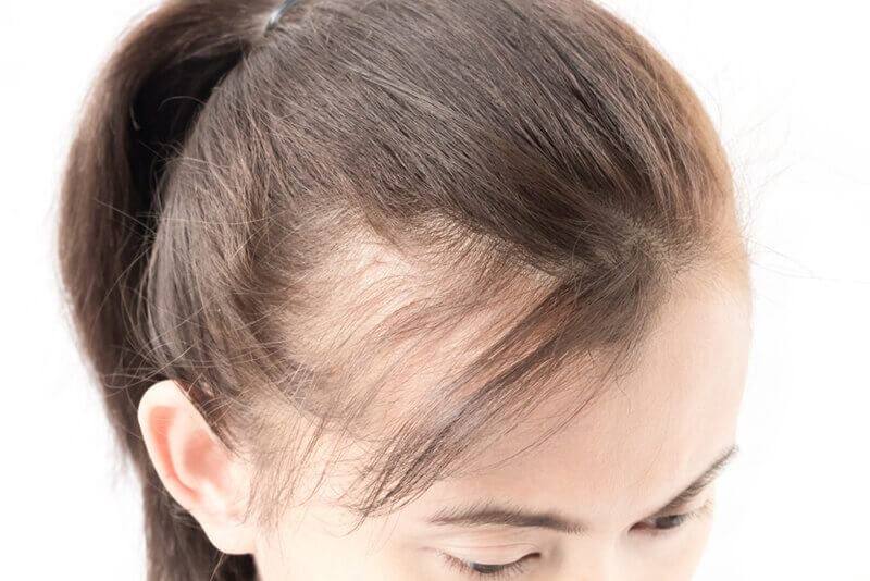 女性の髪の毛を増やす方法
