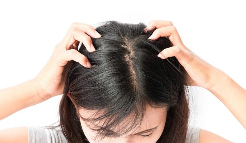 頭皮ニキビの原因はストレス