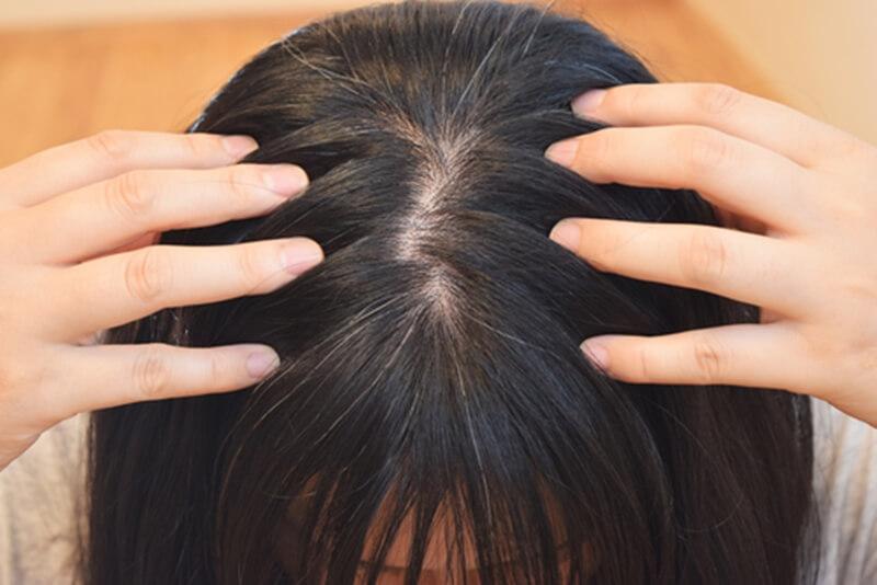髪の毛の分け目が薄い女性の原因