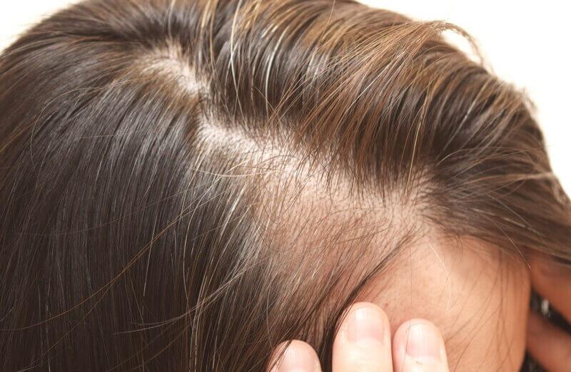 白髪の対策と予防シャンプー