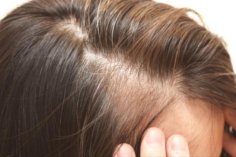 白髪対策におすすめの方法